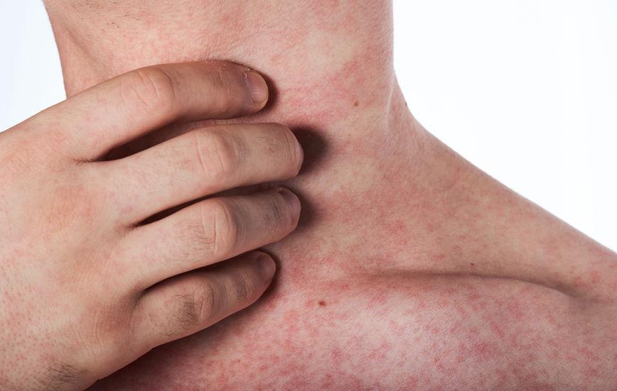 5 causas comuns da pele seca